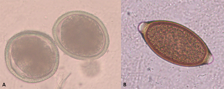 Toxocara canis (A) and Trichuris vulpis (B) unembryonated eggs. These eggs need some weeks in the environment to become infective.