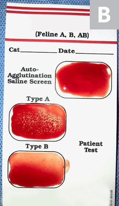 A rapid feline blood-typing kit using ≈3 drops of the recipient's EDTA whole blood and phosphate-buffered saline. The recipient has type A blood, as shown by strong agglutination in the type A box but not in the type B box. If there is agglutination in the control box (ie, auto-agglutination saline screen), the cat is auto-agglutinating, and a blood type cannot be determined without additional steps (eg, washing the cells to remove antibodies). Specific blood-typing instructions should be read carefully, as different manufacturers may interpret tests differently.