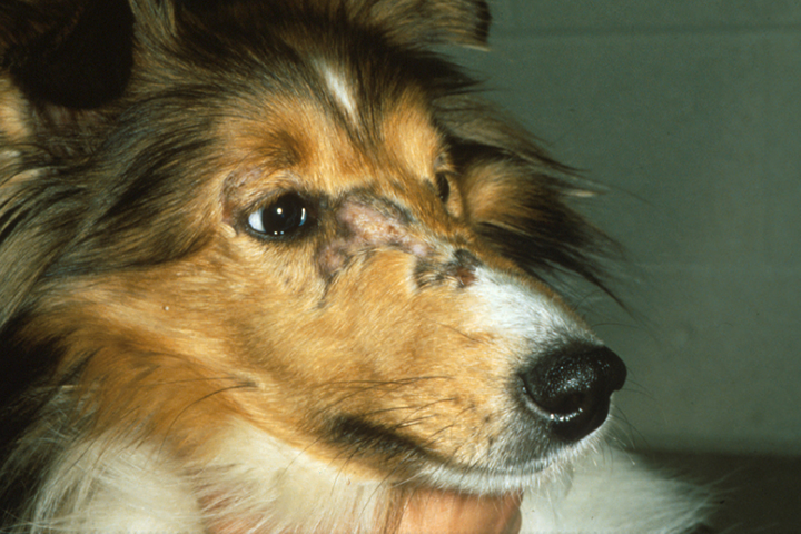 An alopecic, ischemic lesion on the bridge of the nose due to dermatomyositis