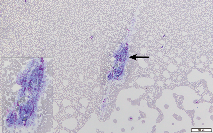 Large platelet clump (arrow and inset) in a blood sample from a dog