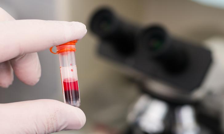 Top 5 Blood Collection & Sampling Errors