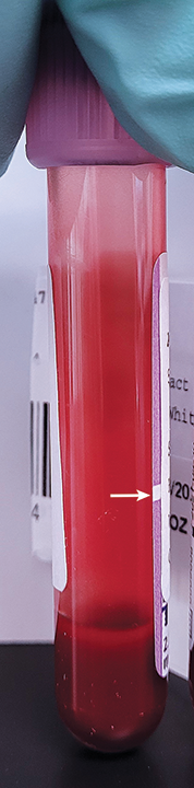 EDTA tube that was submitted to a reference laboratory and contains an insufficient amount of blood for the tube size selected. A subtle fill line (arrow) is visible.