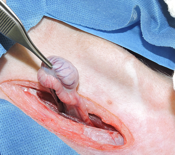 Left paramedian approach to remove a free left abdominal cryptorchid testicle