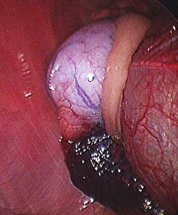 A cryptorchid testicle identified adjacent to the urinary bladder with a laparoscope. Image courtesy of Journal of the American Veterinary Medical Association