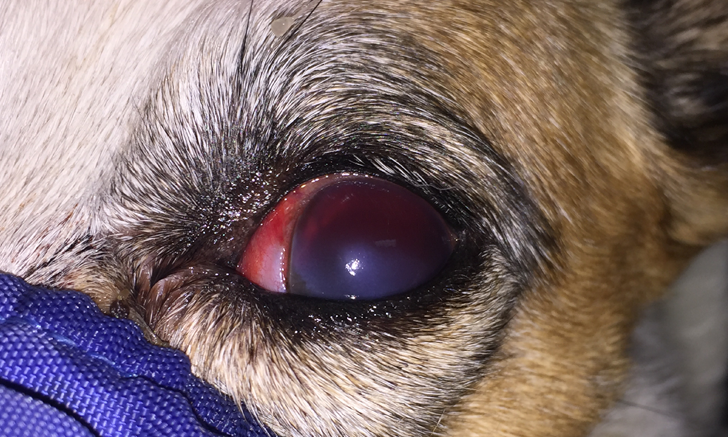 Ocular Hemorrhage