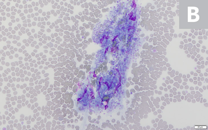 Platelet clumps (A; circled) identified at the feathered edge on a blood film from a dog (200× magnification). Higher magnification (B; 600×) of the large platelet clump shown in A. Modified Wright's stain