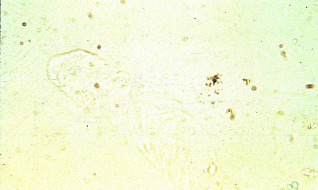 Canine Glomerulonephritis