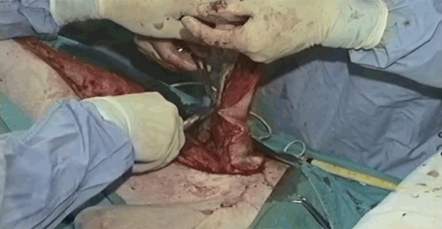 Surgeon's Corner: Caudal Superficial Epigastric Skin Flap