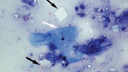 Epidermal Inclusion Cyst Cytology Dog Top 5 Masses Di...