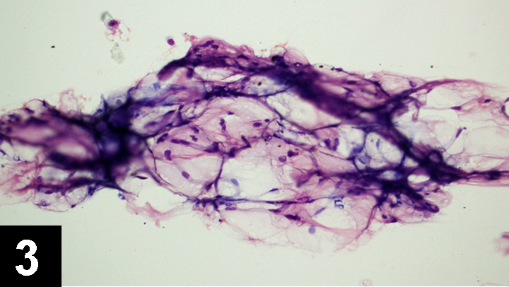 Top 5 Masses Diagnosed with In-House Cytology | Clinician's