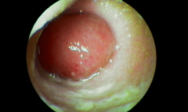 Diagnosis & Management of Otitis