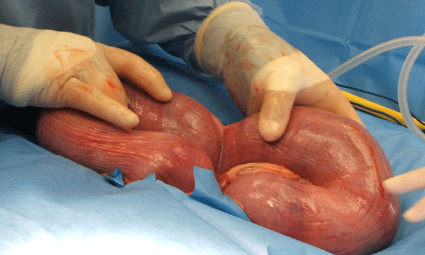 Cesarean Section in the Dog