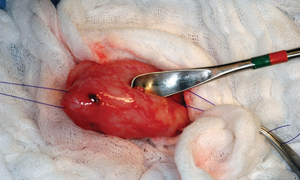 Emergency Urinary Bladder Surgery