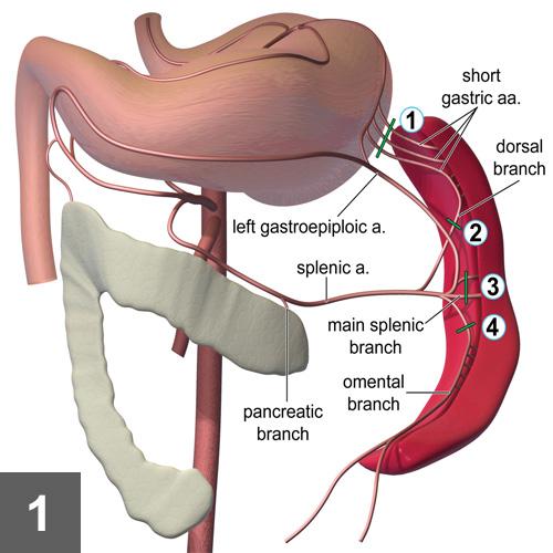 Total Splenectomy | Clinician\'s Brief