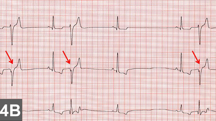 Top 5 Arrhythmias in Dogs & Cats | Clinician's Brief