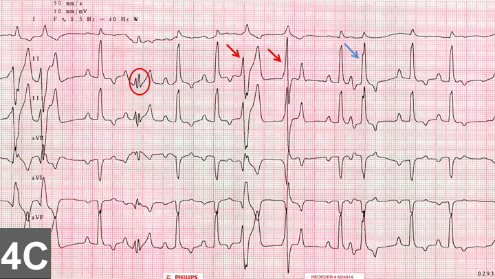 Top 5 Arrhythmias In Dogs Cats Clinician S Brief