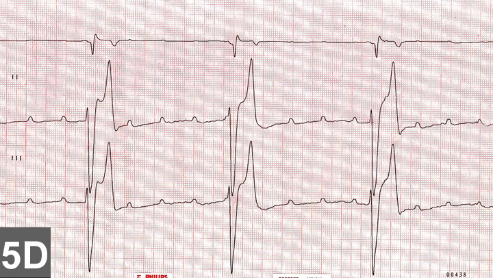 Top 5 Arrhythmias In Dogs Cats Clinicians Brief