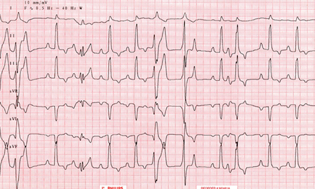 Top 5 Arrhythmias in Dogs & Cats