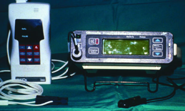 Anesthesia Monitoring & Pulse Oximeters
