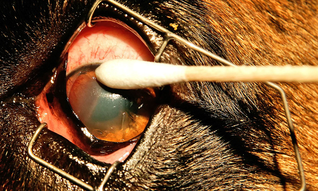 Multiple Punctate/Grid Keratotomy for Indolent Corneal Ulcers