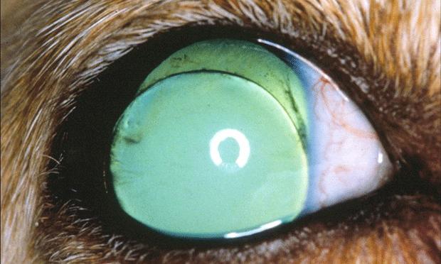 Acute Primary Angle-Closure Glaucoma