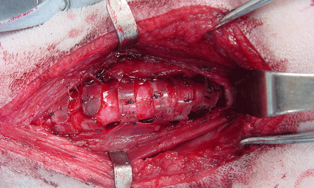 Tracheal Collapse: Extraluminal Rings & Tracheal Stents