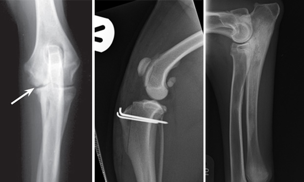 Top 5 Juvenile Orthopedic Conditions