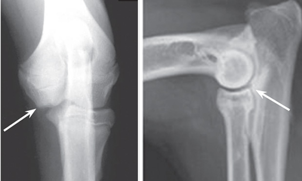 Medial Compartment Disease of the Elbow