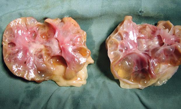Feline Polycystic Kidney Disease