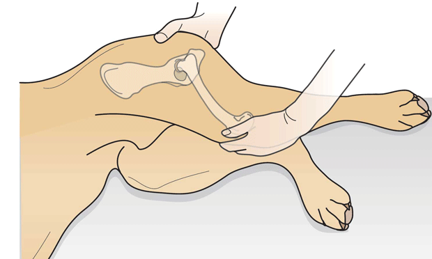 Palpating for the Ortolani Sign When Diagnosing Hip Dysplasia