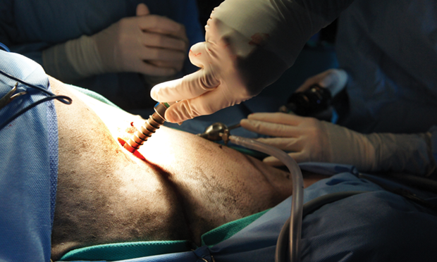Open & Laparoscopic-Assisted Incisional Gastropexy