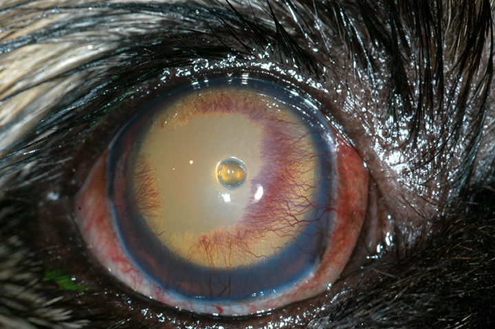 Descemetocele with clear area at greatest depth: This cornea is very unstable and at high risk for perforation.