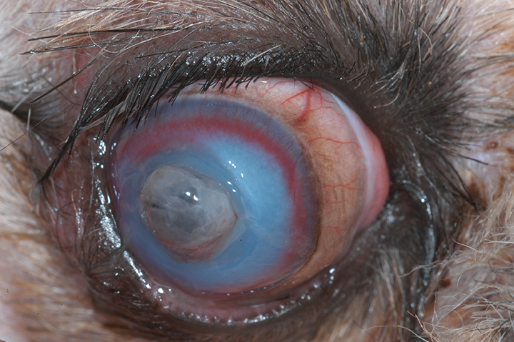 Corneal perforation that will require a conjunctival and/or collagen graft to stabilize the globe.