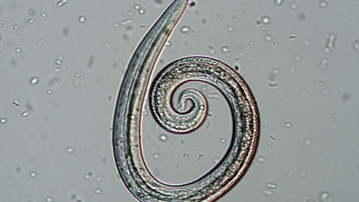Aelurostrongylus spp L1 larva identified from Baermann fecal sample. Courtesy of Dwight D. Bowman, MS, PhD, DACVM (Hon), Cornell University