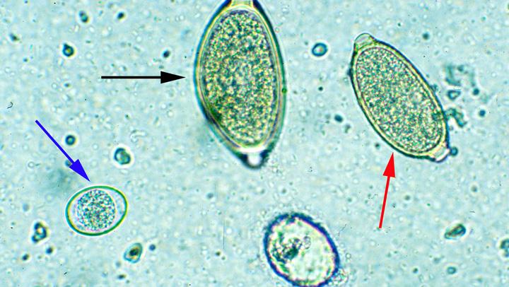 Comparison of a Trichuris spp egg (black arrow) with a capillarid egg (red arrow) and an Isospora spp oocyst (blue arrow). Courtesy of Anne M. Zajac, DVM, PhD, Virginia-Maryland Regional College of Veterinary Medicine