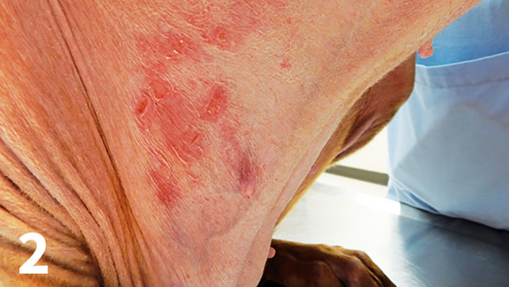 Cutaneous atrophy and ulcerations in a dogs inguinal region caused by prolonged frequent application of betamethasonegentamicin spray.