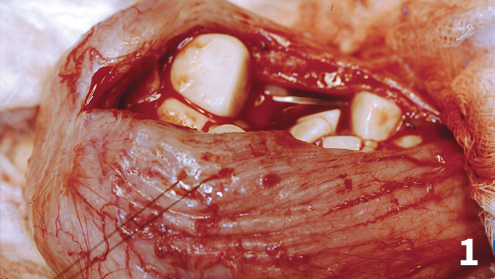 Cystotomy for multiple cystoliths.