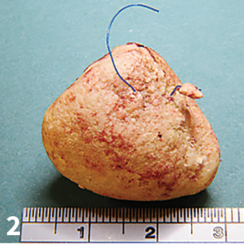 Suture removed from lumen of the bladder of a dog with history of multiple cystotomies for cystolith removal associated with urinary tract infections.