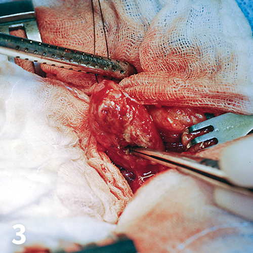 Exploration of a dog with uroperitoneum after closure of ruptured urinary bladder with a simple continuous pattern.