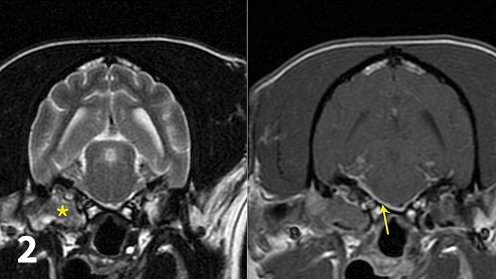 Transverse T2-weighted (left) and post-contrast T1-weighted (right) images obtained from a cockapoo with sudden onset of right peripheral vestibular dysfunction and right-sided facial paralysis. MRI showed right (*) worse than left middle ear disease with extension into the calvarium (otogenic meningitis; arrow) and into the right horizontal ear canal. Neutrophilic pleocytosis was present in the CSF (no bacteria seen on direct examination; CSF culture negative). The patient was treated with oral clindamycin for 1 month to reduce the intracranial portion of infection, and then right total ear canal ablation and lateral bulla osteotomy was performed. The histologic diagnosis for the tissue in the tympanic bulla was cholesteatoma, and bacterial culture identified secondary Staphylococcus pseudintermedius infection. The antibiotic was changed to amoxicillin-clavulanate based on antibiotic sensitivity testing.