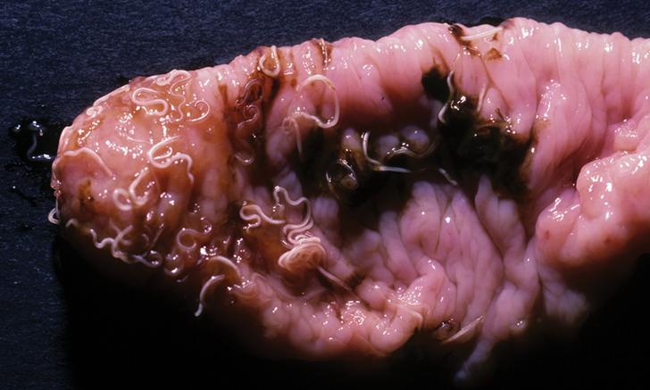 Quiz: Intestinal Parasites