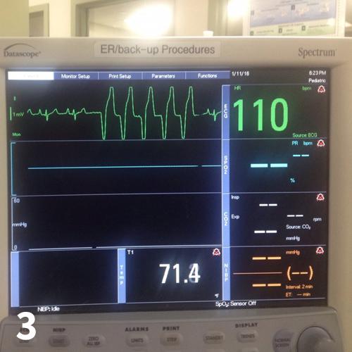 Ventricular arrhythmia on electrocardiography