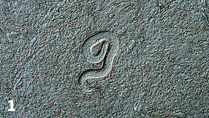 Tissue press of murine brain tissue showing an infective third-stage larva of Toxocara canis