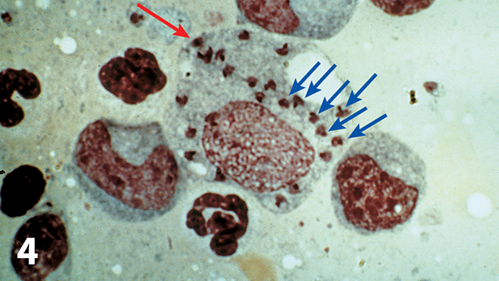 Giemsa-stained impression smear from canine splenic tissue showing a macrophage (red arrow) with numerous amastigotes (blue arrows) of Leishmania infantum