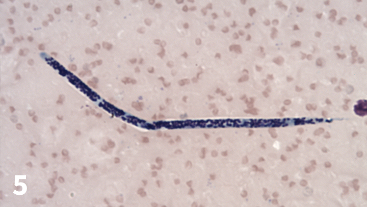 Giemsa-stained microfilaria of Dirofilaria immitis in a peripheral blood smear