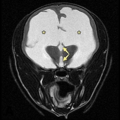 Transverse MRI at the level of the thalamus demonstrating severe enlargement of the lateral ventricles (asterisks) and third ventricle (arrows)