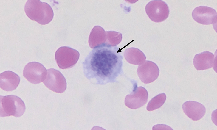 Top 5 Breed-Associated Hematologic Abnormalities