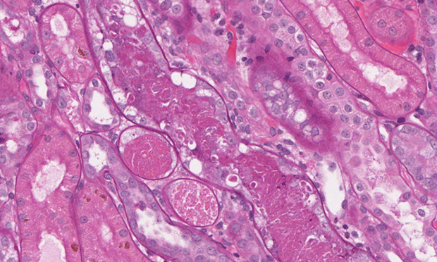 Renal Biopsy - When & Why