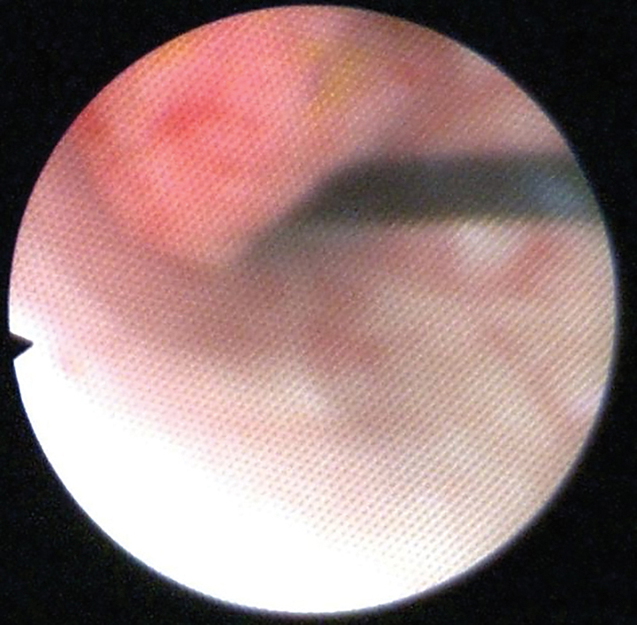 Cystoscopic image of an ulcerated polypoid mass extending into the bladder lumen