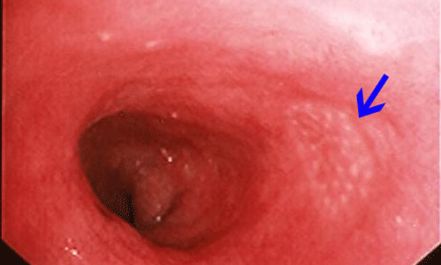 Intestinal Endoscopic Biopsy Techniques